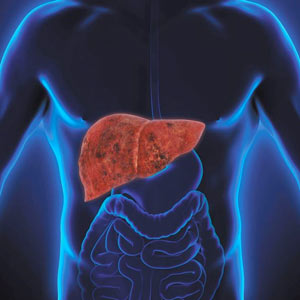 Raised Liver Enzymes & Fatty Liver